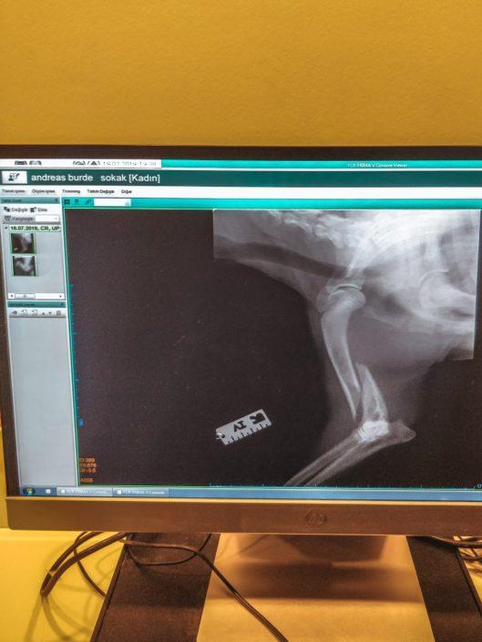 Röntgenaufnahme eines der Brüche - X-ray of one of the fractures
